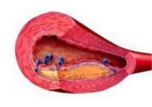 动脉粥样硬化斑块形成治疗方法是什么,这个你可以试试