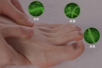 灰指甲会引起水肿吗?该如何治疗?
