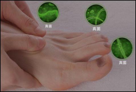 灰指甲的病因及危害