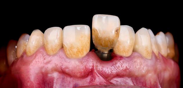 預防種植體周圍炎,不妨試試可以消滅牙菌斑的iPMTC智能可視牙菌班清潔儀