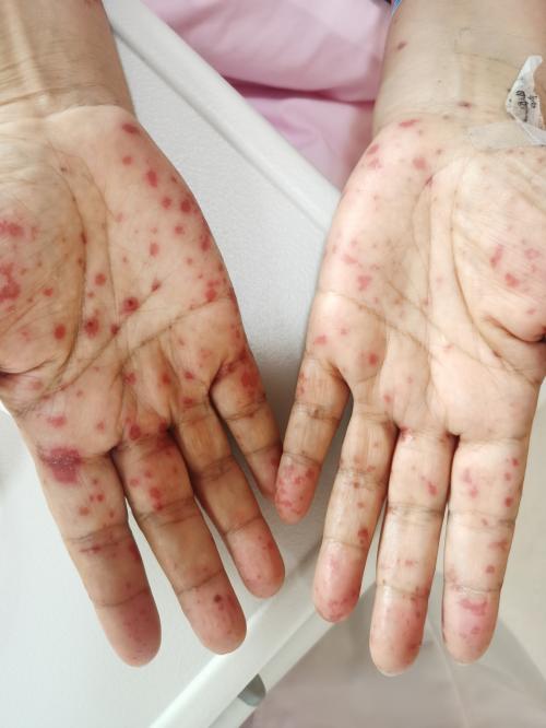 """西安國際醫學中心醫院整形醫院皮膚科成功救治""""人民教師""""重癥藥疹患者"""