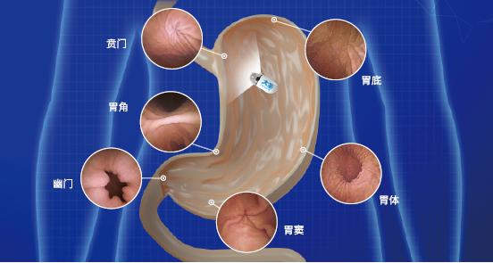 """呼市東大肛腸醫院 胃鏡檢查""""新生代""""——磁控膠囊內鏡"""