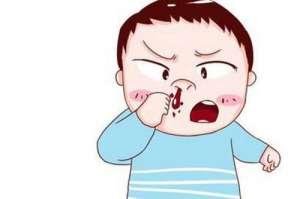 成都民生耳鼻喉治鼻出血好吗?让百姓放心的平价医院