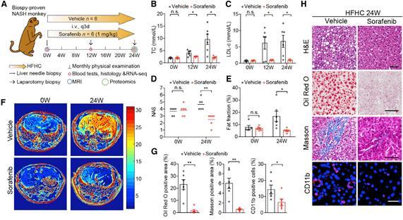 专注非酒精性脂肪肝病临床研究 李红良团队连发3篇重要成果