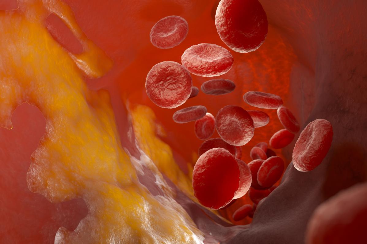 納豆紅曲膠囊的功效?幫助中老年人輔助降血脂!
