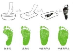 這些日常穿戴矯正鞋習慣可能導致效果適得其反