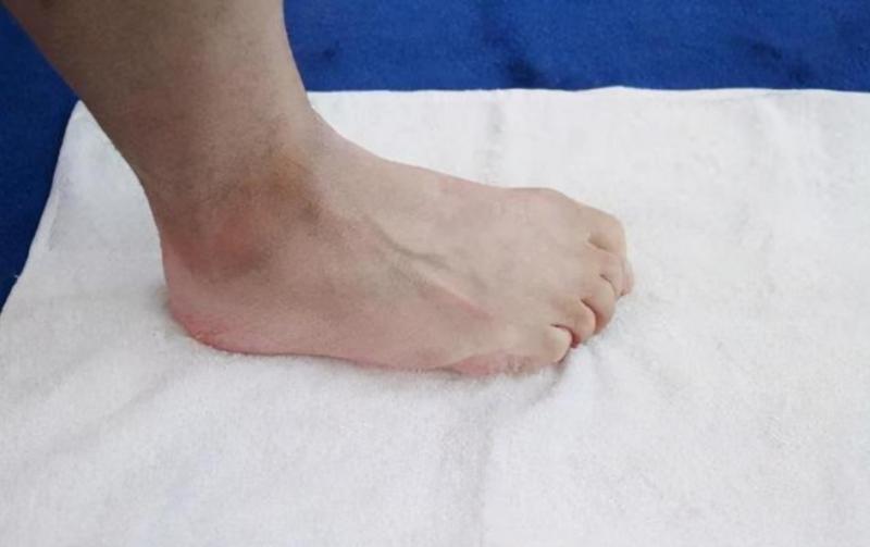 严重扁平足不着急,科学配矫正鞋来干预