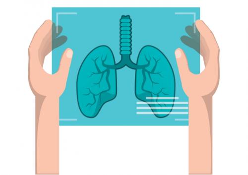 在什么情况下肺癌患者一定要做化疗?