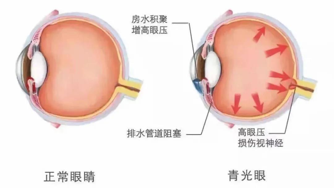 哪些人会得青光眼?合肥爱尔眼科医院