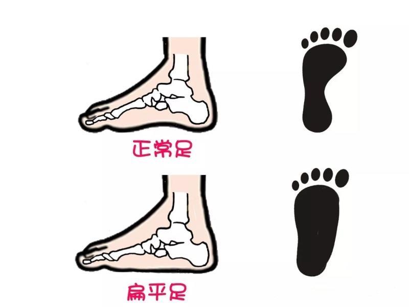 让扁平足孩子在世界步行日也能快乐行走,专业的矫正鞋少不了