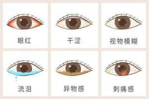 """HOPE LIFE 小仙丸:NMN可改善干眼症,让眼睛""""重返年轻"""""""