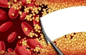 血脂偏高怎么降,日常补充纳豆红曲胶囊辅助降血脂